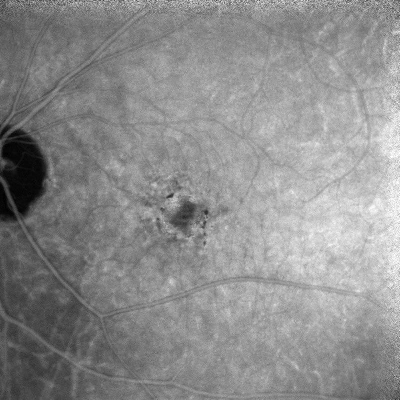 indocyanine green (ICG) angiography